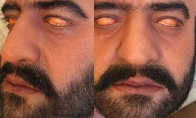 NTR's look has awe-and-shock effect